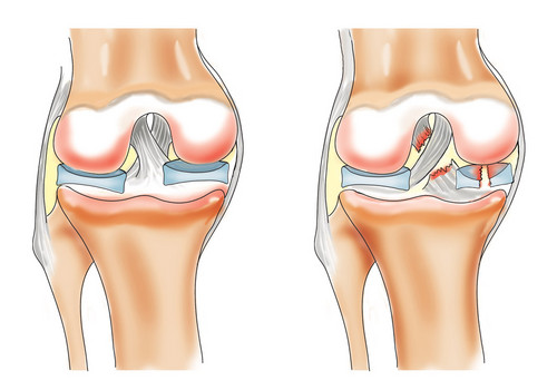 Чудо 21 века: проблема поврежденных мышц и суставов решена